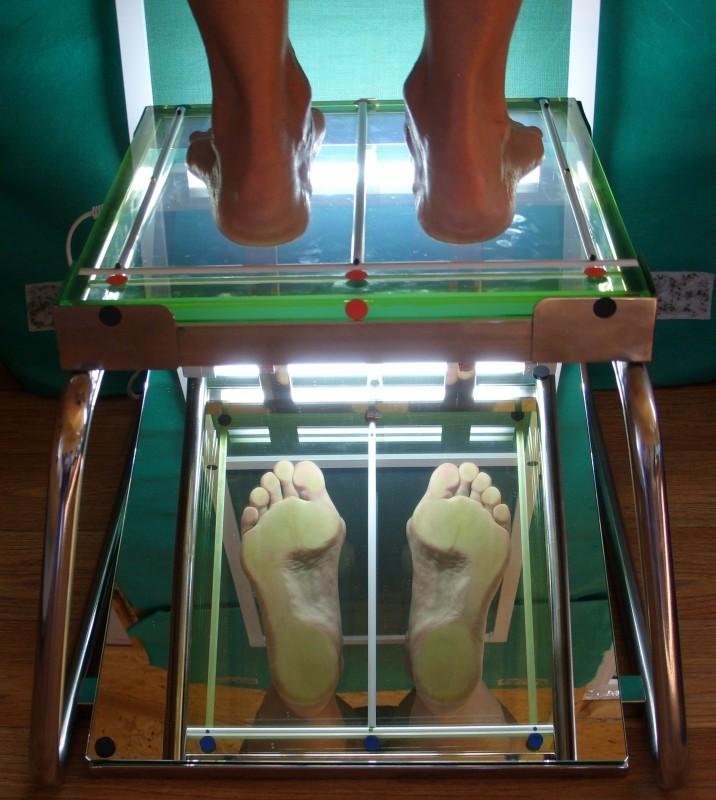 035e57de8 Изготовление индивидуальных ортопедических стелек - Лечение ...